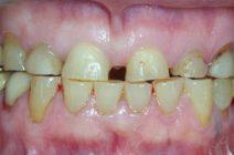 Медицинская каппа при скрипе зубов по ночам