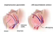 Причины задержки дыхания (апноэ) в период сна