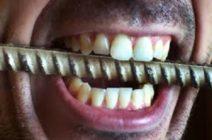 Скрежет зубами можно лечить!