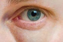 Отеки под глазами в утреннее время: основные причины и способы их устранения