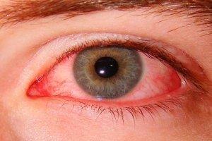 Покраснение глаз после сна: основные причины и методы лечения